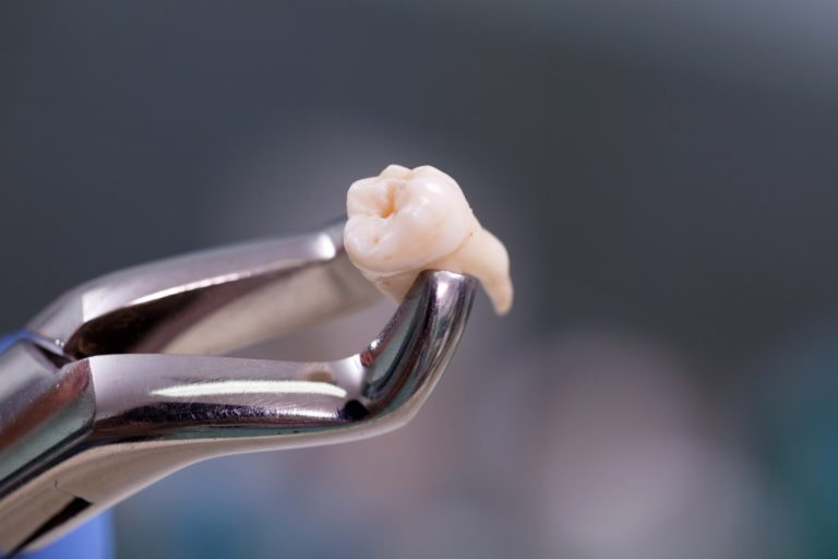 tweezers holding a tooth